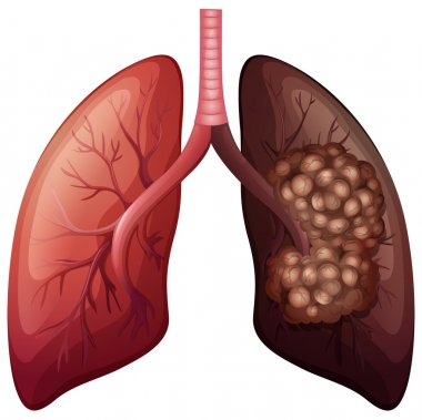 Normal lung and lung cancer