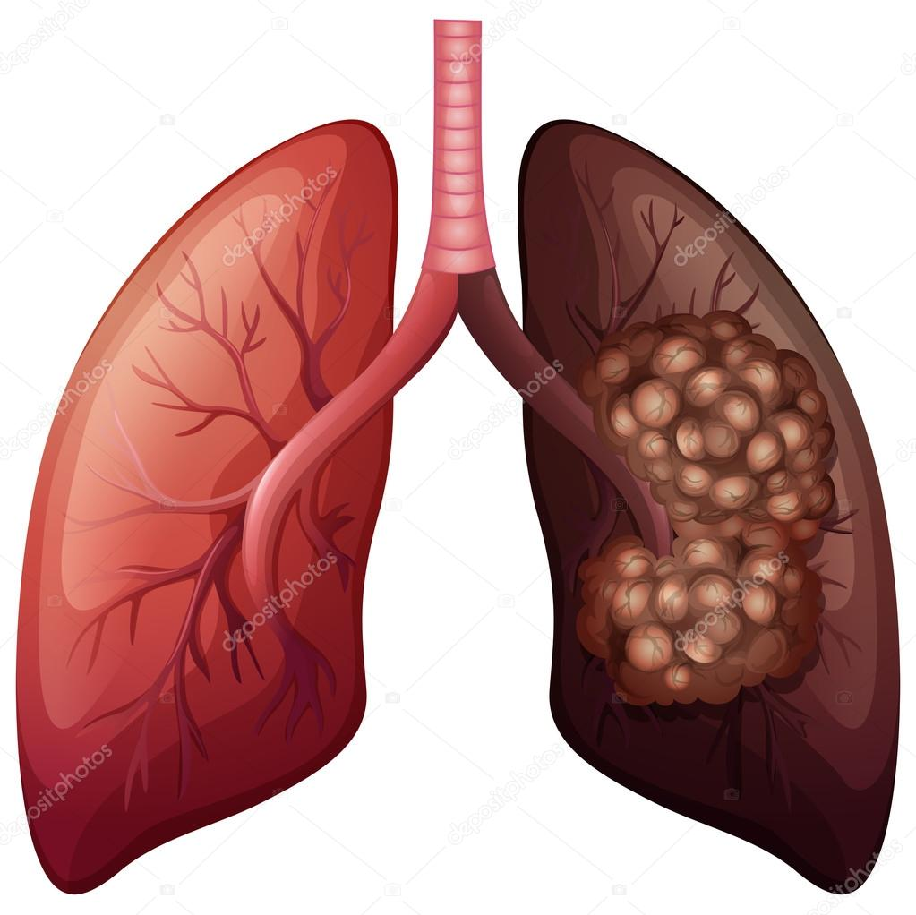 Normal lung and lung cancer — Stock Vector © blueringmedia #83403480