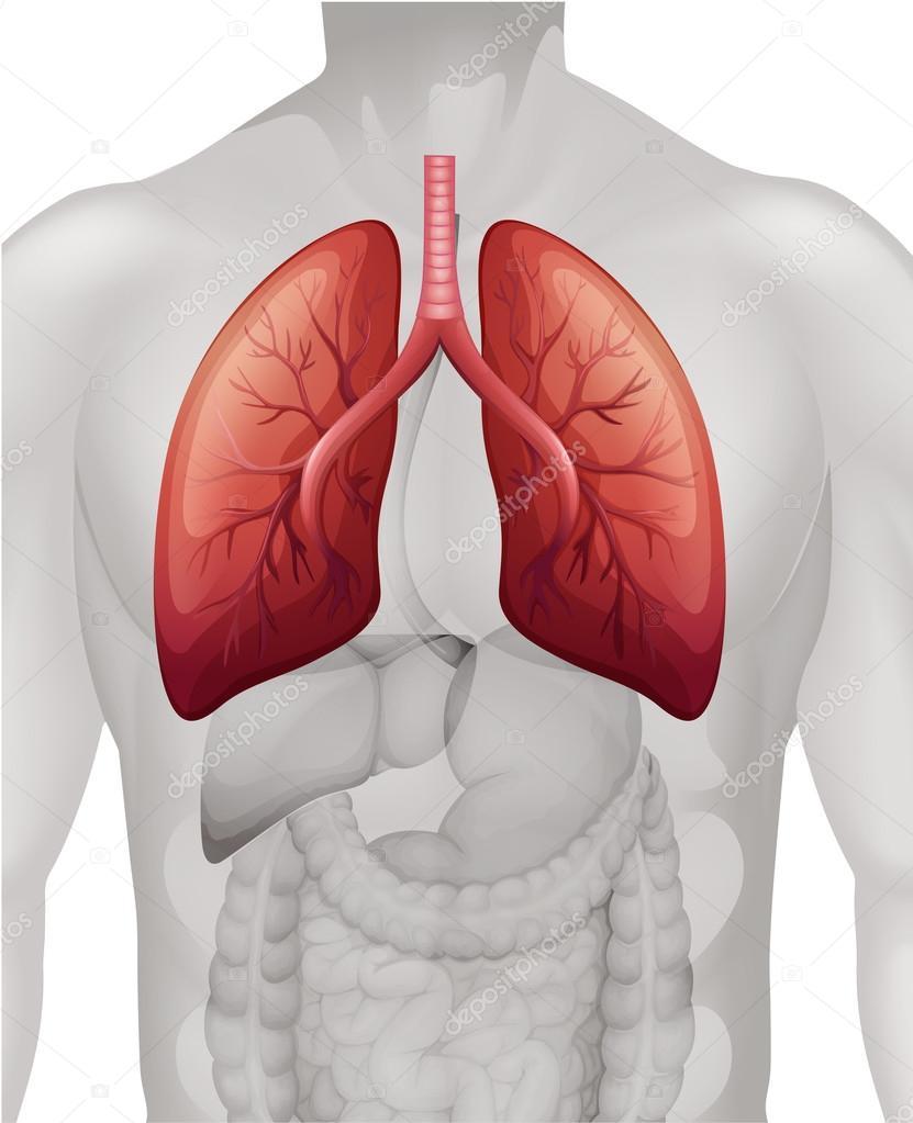 Diagrama de cáncer de pulmón en humanos — Vector de stock ...