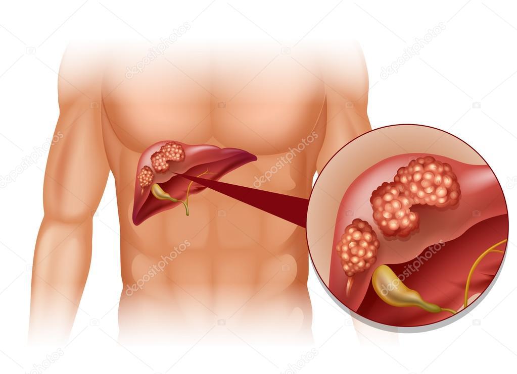 Cáncer de hígado en humanos — Archivo Imágenes Vectoriales ...