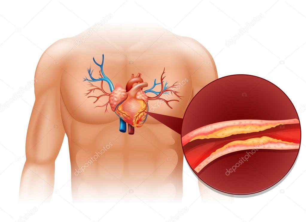 Colesterol corazón cuerpo humano — Archivo Imágenes Vectoriales ...