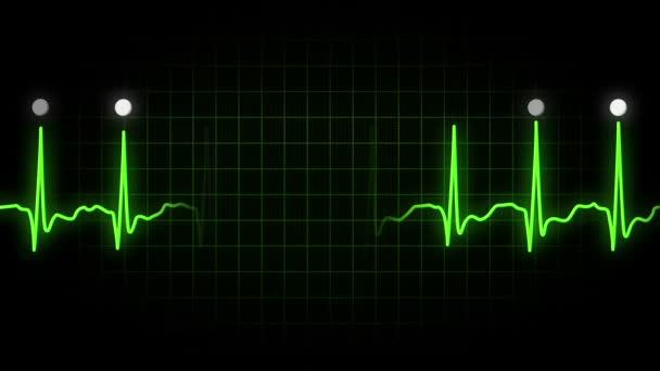 Schermo Monitor EKG