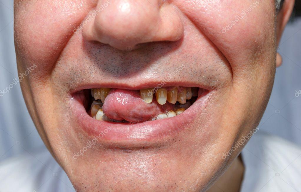 Фото зубов мужчины французские мужчины фото