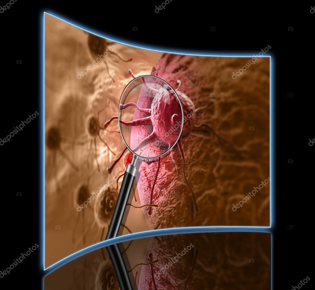 3D-Rendering von Krebs Zelle im menschlichen Körper — Stockfoto ...