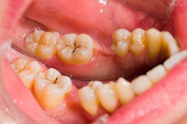 Cavity between healthy teeth