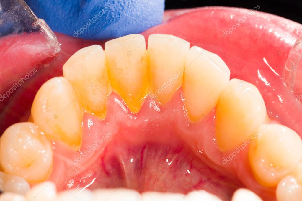 Dental plaque in human mouth