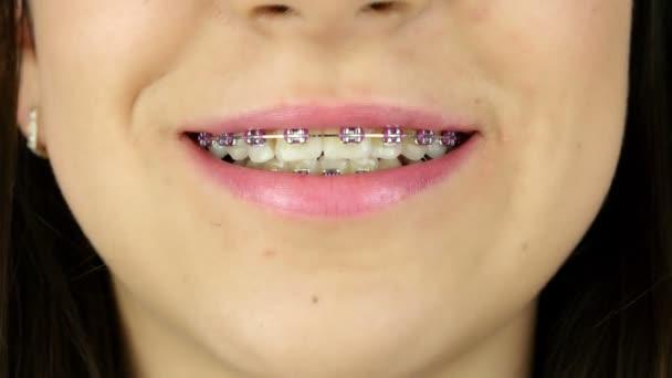 Nahaufnahme eines lächelnden jungen Mädchens mit Klammern an den Zähnen
