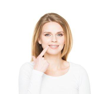 teenage girl smiling in dental braces