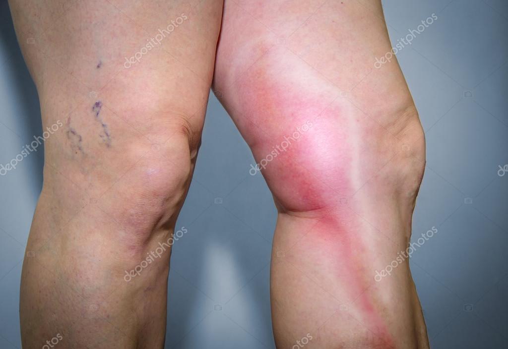 Se thrombophlebitis è possibile andare a una sauna