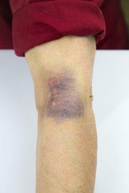 Large hematoma on human arm