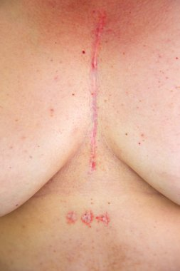 Womans chest with postoperative scar of cardiac surgery