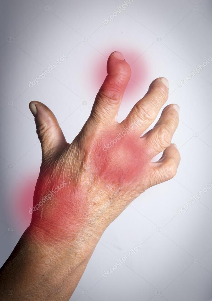 járás közben fájdalom jelentkezik a csípőízületben vállízületek vad fájdalom