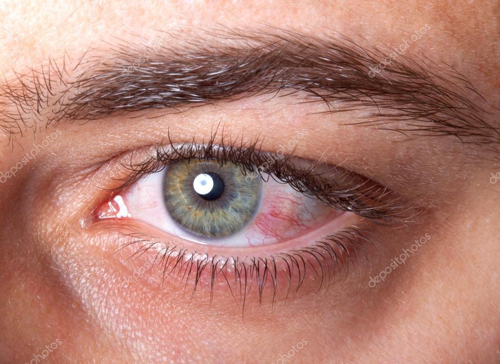 Imágenes Ojos Rojos Llorando Irritación De Ojos Rojos Inyectados
