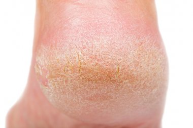 Dry skin on heel