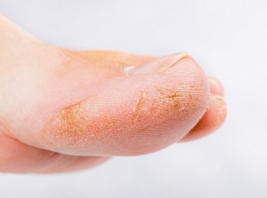 Dry skin on big toe