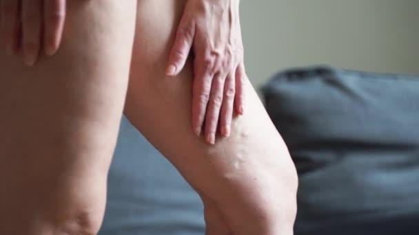 Krampfadern Nahaufnahme Bein. Gesundheitsprobleme älterer Frauen. Fuß mit erkrankten Venen. Gesundheitswesen, Podologie.