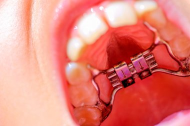 A new dental braces