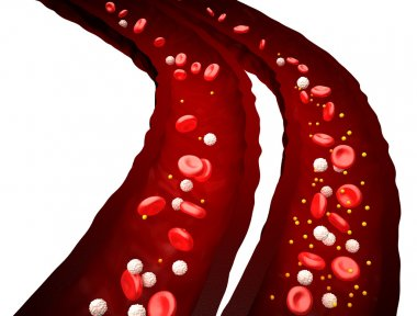 Blood Stream - Normal vs Diabetes - isolated on white