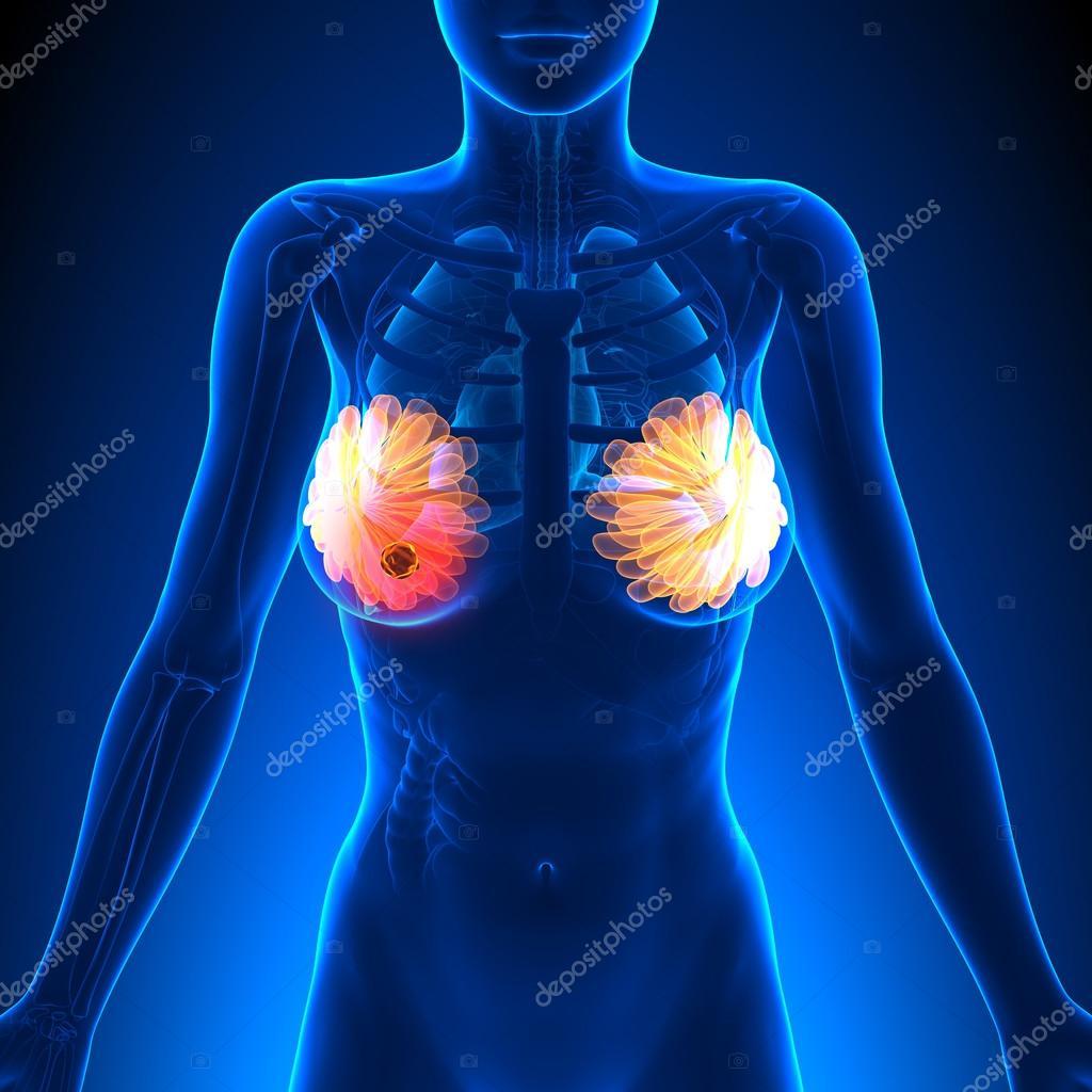 Pecho realzado de tumor cáncer - anatomía femenina- — Foto de stock ...