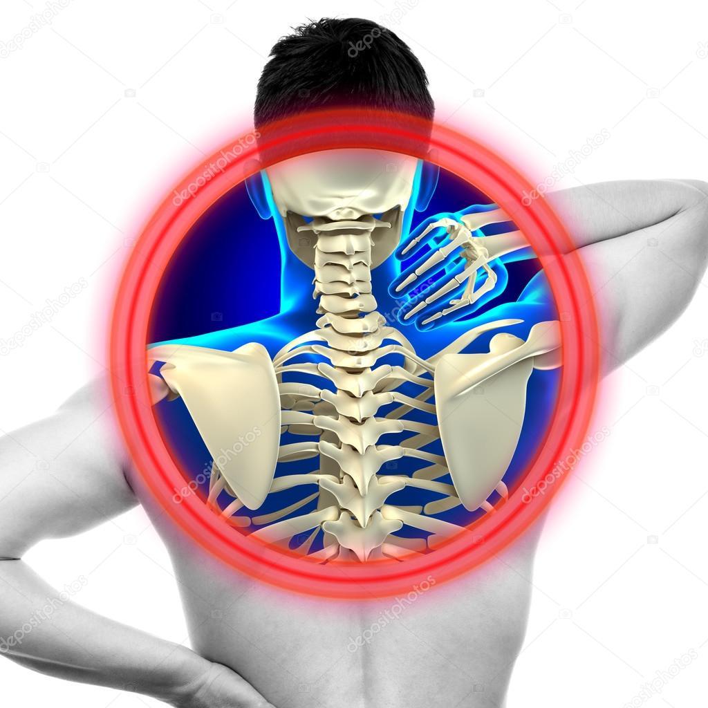 Nacken Schmerzen Halswirbelsäule isoliert auf weiss - echte Anatomie ...