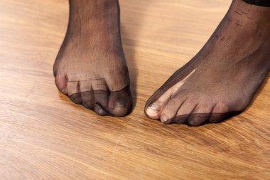 Torn stockings