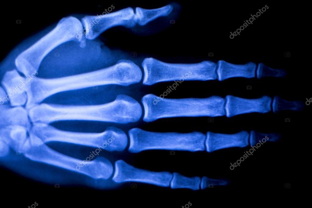 Mano dedos pulgar muñeca radiografía exploración — Foto de stock ...