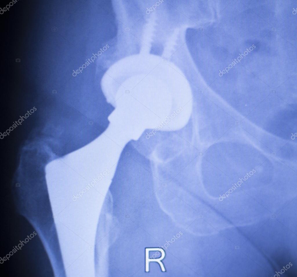 Ортопедический г.москва по замене суставов лечение суставов холод или тепло