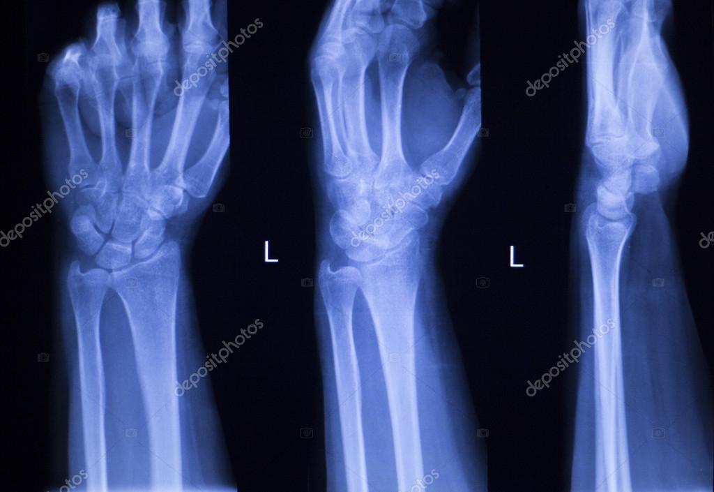 Mano dedos pulgar muñeca radiografía exploración — Fotos de Stock ...