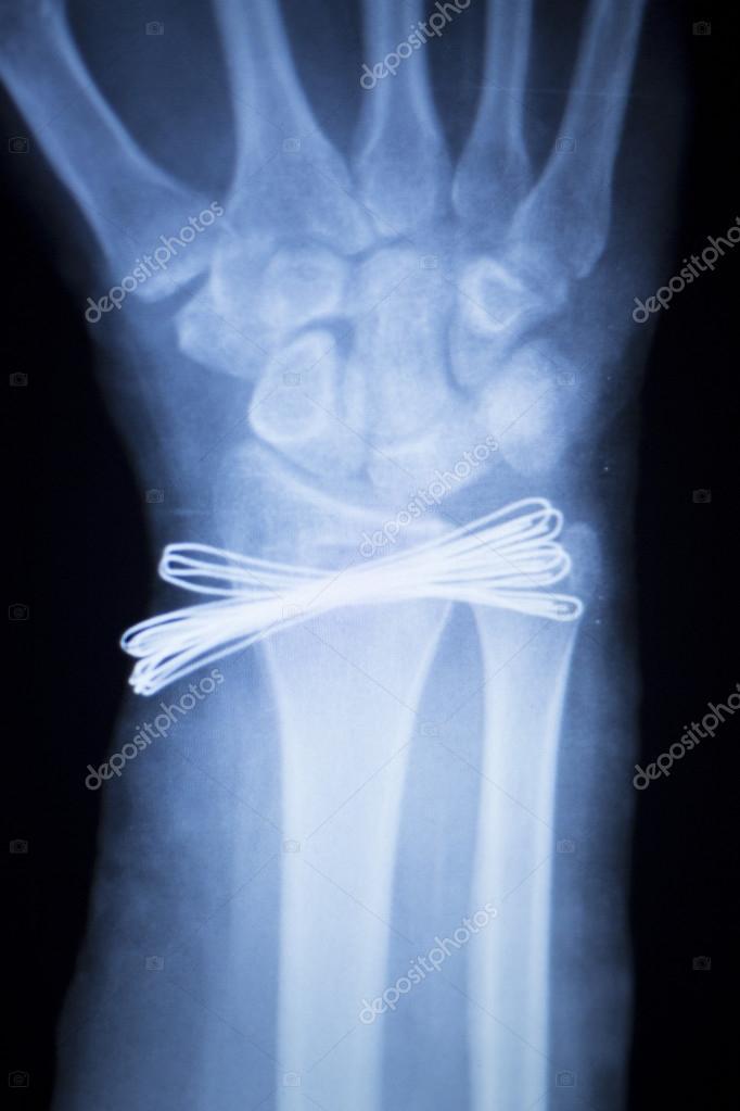 Metal de lesiones de muñeca exploración radiografía del implante ...