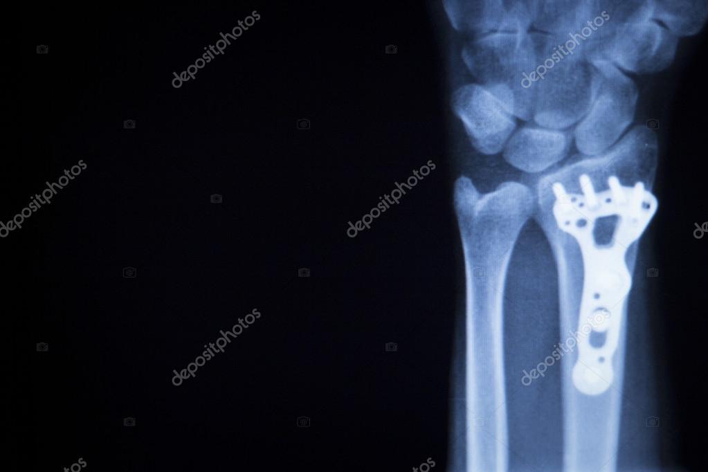 Handgelenk Verletzungen Metall Implantat Xray-scan — Stockfoto ...