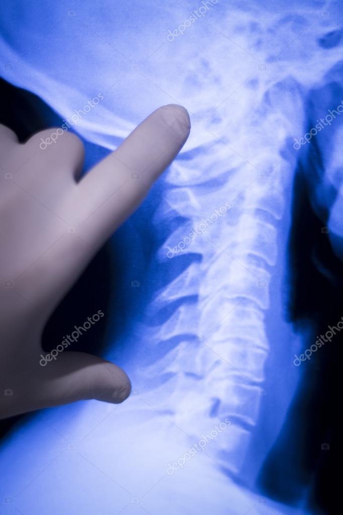 Wirbelsäule wieder Hals Xray-scan — Stockfoto © edwardolive #105827346
