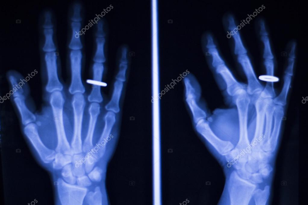 Hand und Finger-Verletzung-Xray-scan — Stockfoto © edwardolive ...