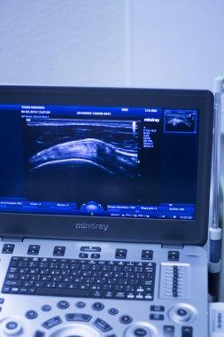 Ultrasound ecography EPI dry needling