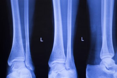 Foot ankle injury xray scan