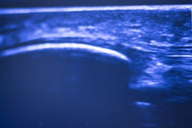 Ultrasound ecograph EPI ecography