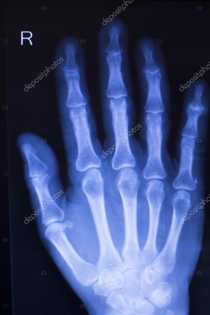 Lesiones de mano dedos radiografía exploración — Foto de stock ...
