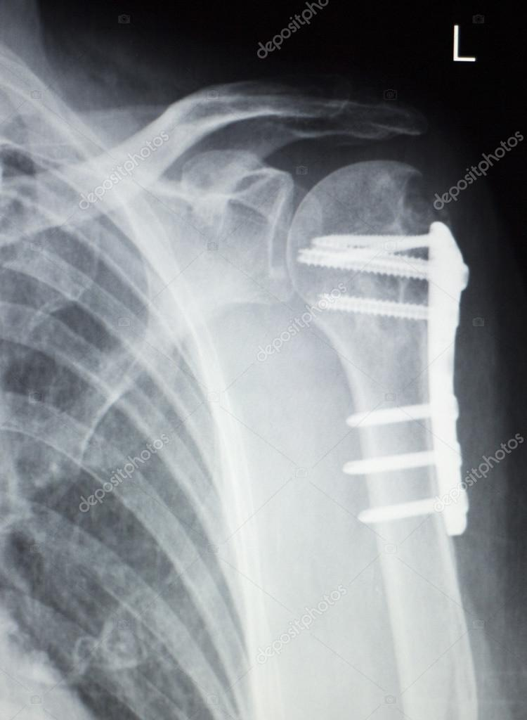 Schulter-Orthopädie-Implantat-xray — Stockfoto © edwardolive #118152216