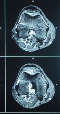 MRI scan test results knee meniscus injury