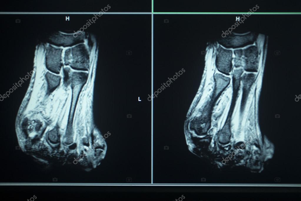 MRI scan test results foot toes injury — Stock Photo © edwardolive ...