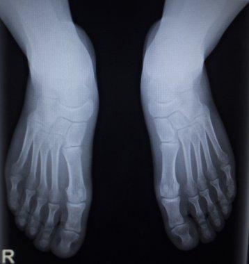 X-ray orthopedics scan of foot injury anterior posterior AP