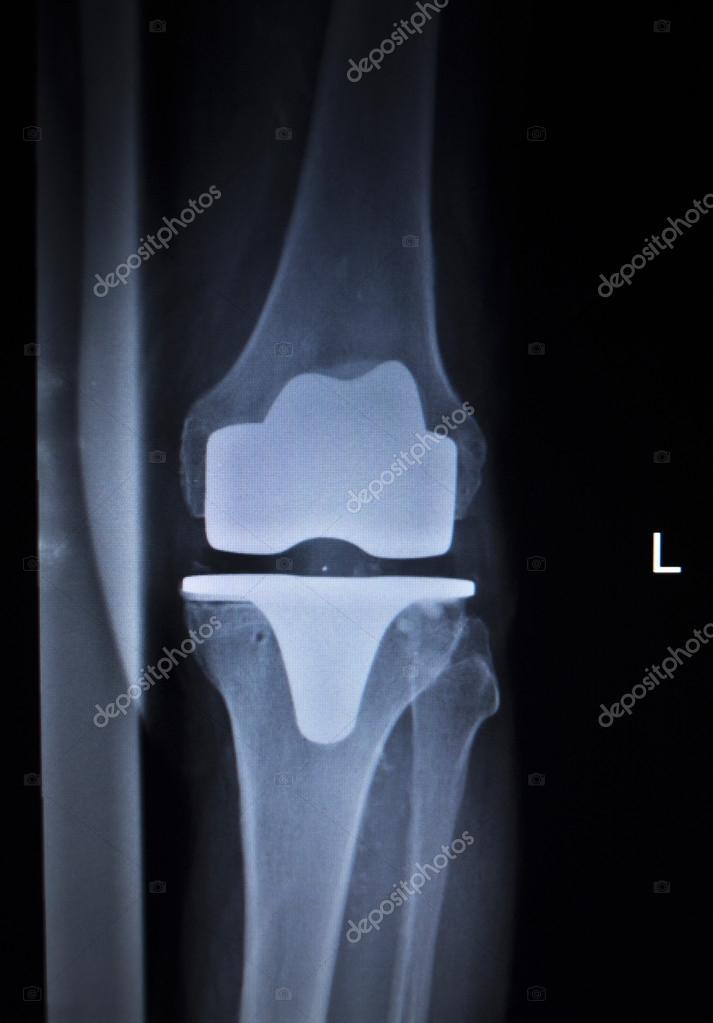 Сканирование коленного сустава вальгусная деформация коленных суставов