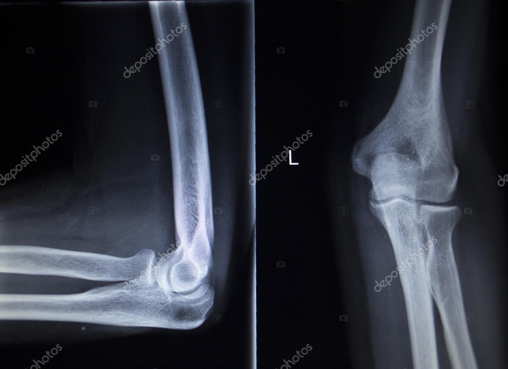 X-ray Orthopädie Traumatologie scan der Ellenbogen ...