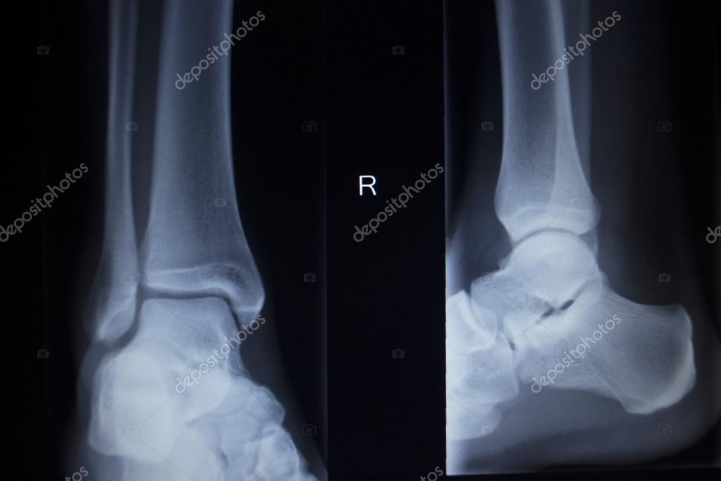lábízületek boka sérülése