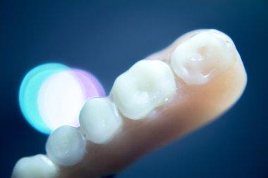 Prosthetic dental partial dentures