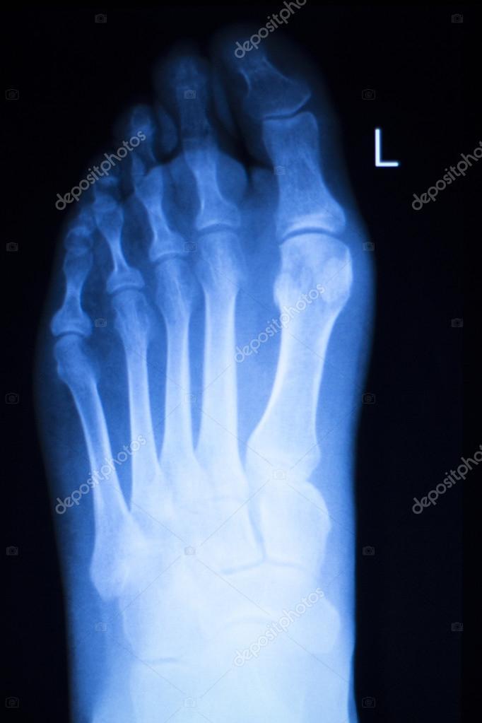 Exploración de rayos x de lesiones pie y dedos de los pies — Foto de ...