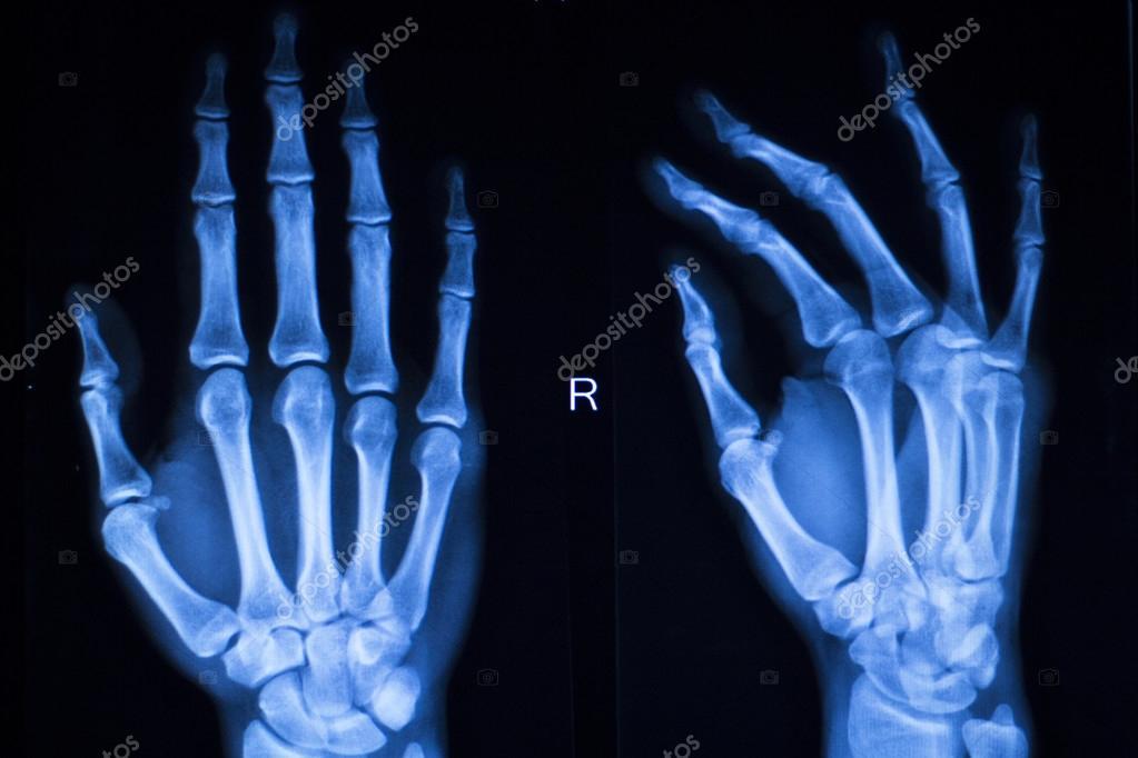 Scannen von Hand Finger Daumen Krankenhaus xray — Stockfoto ...