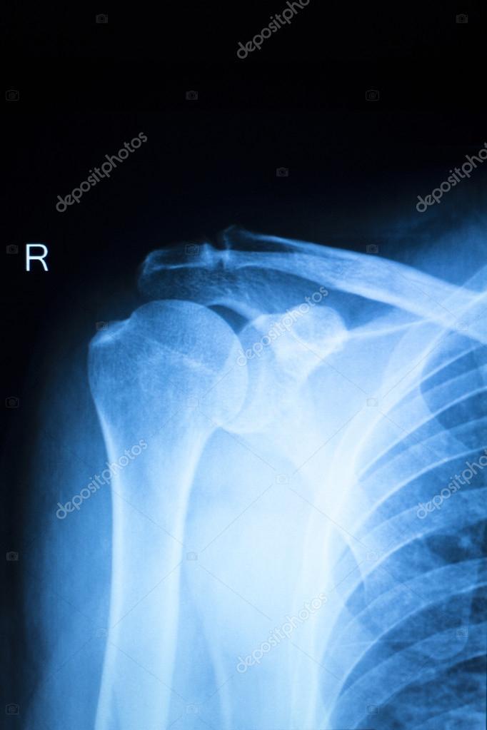 Schulter Verletzung Orthopädie Xray scan — Stockfoto © edwardolive ...