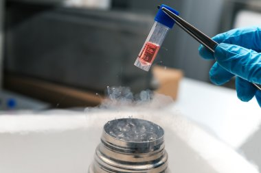 Scientist working in Liquid Nitrogen bank with suspension of stem cells.