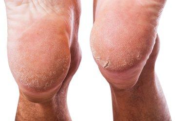 skin on heel