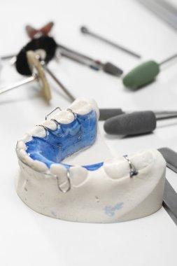 Colored dental braces